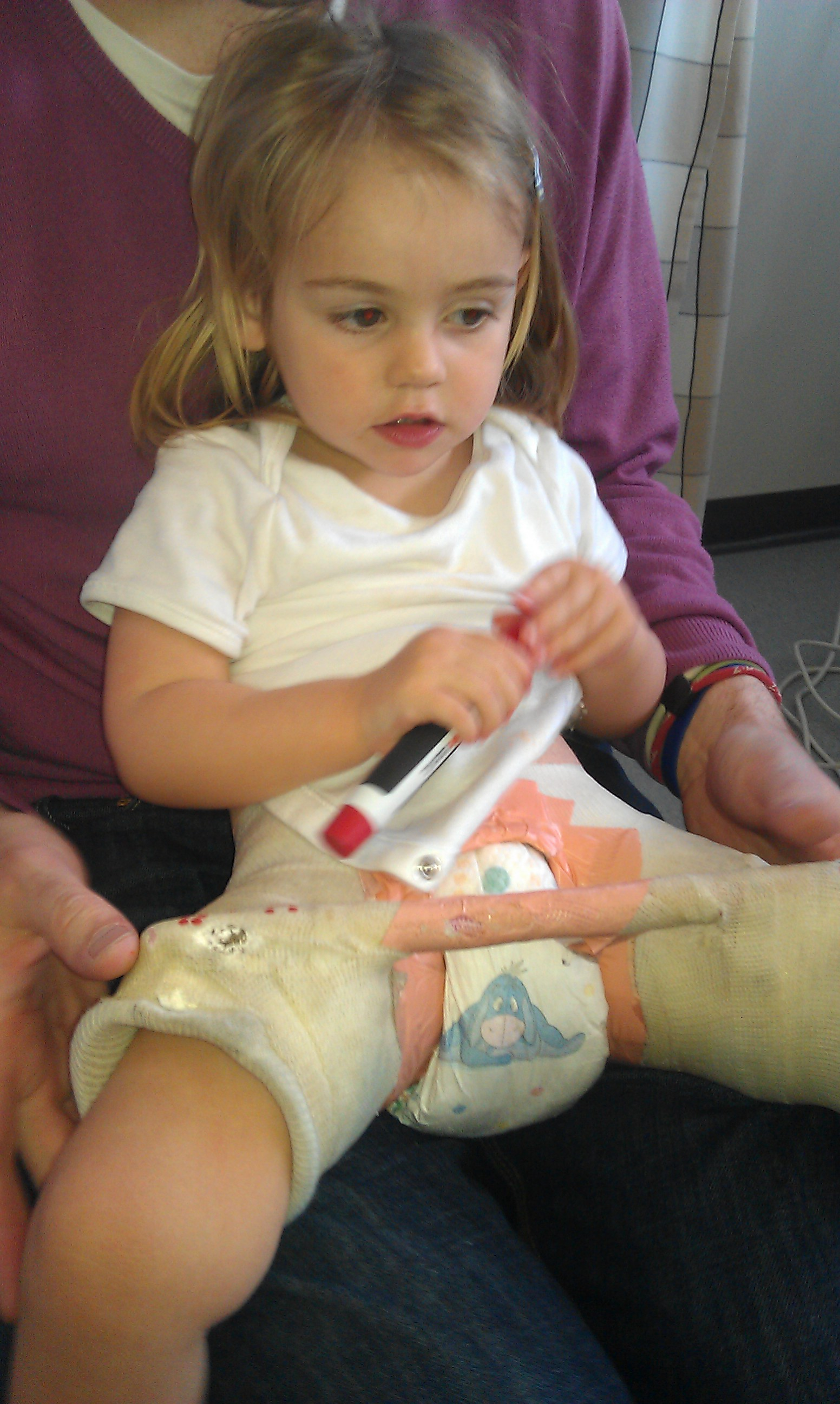 Ddh How To Prevent Hip Dysplasia In Babies Northernmum