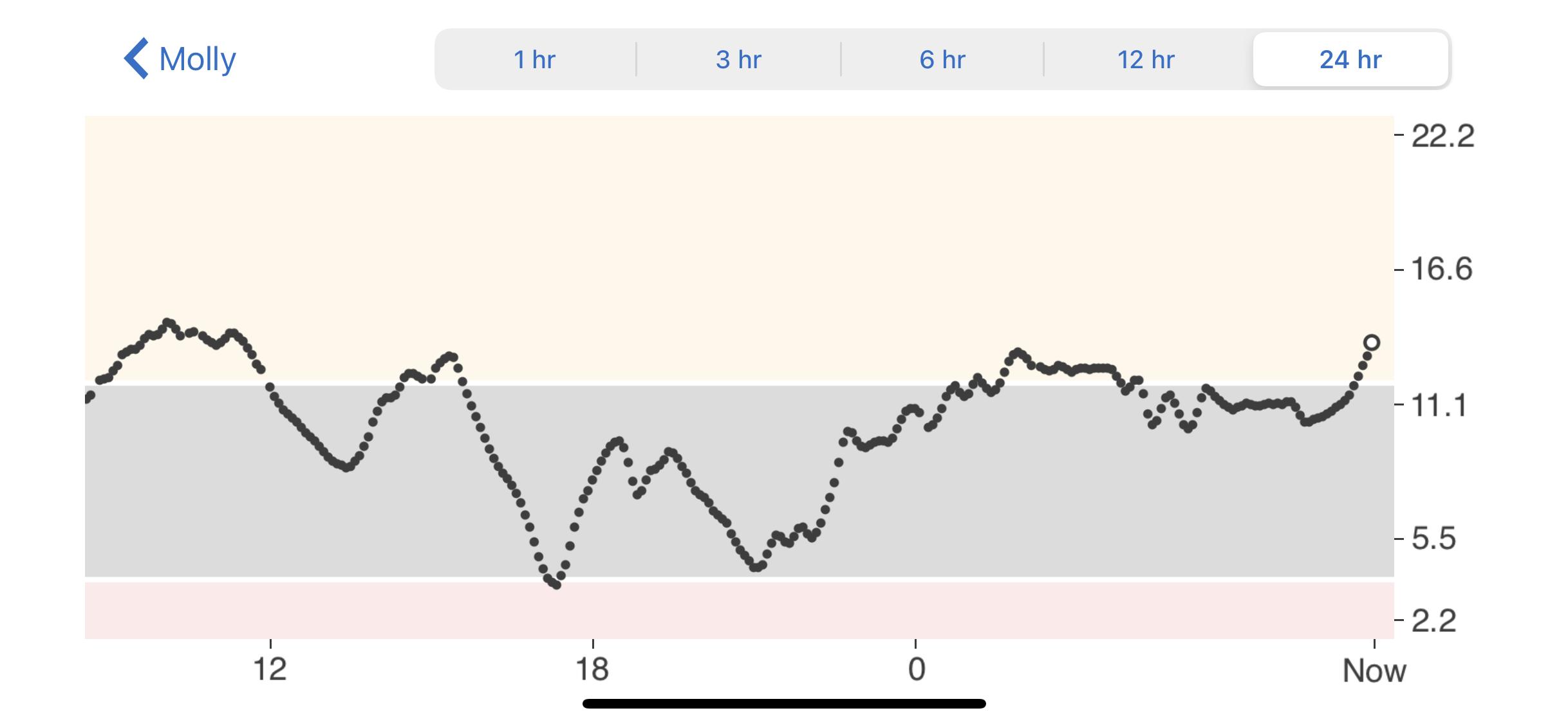 Type 1 Diabetes, a Dexcom graph